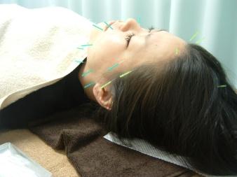 美容鍼灸4